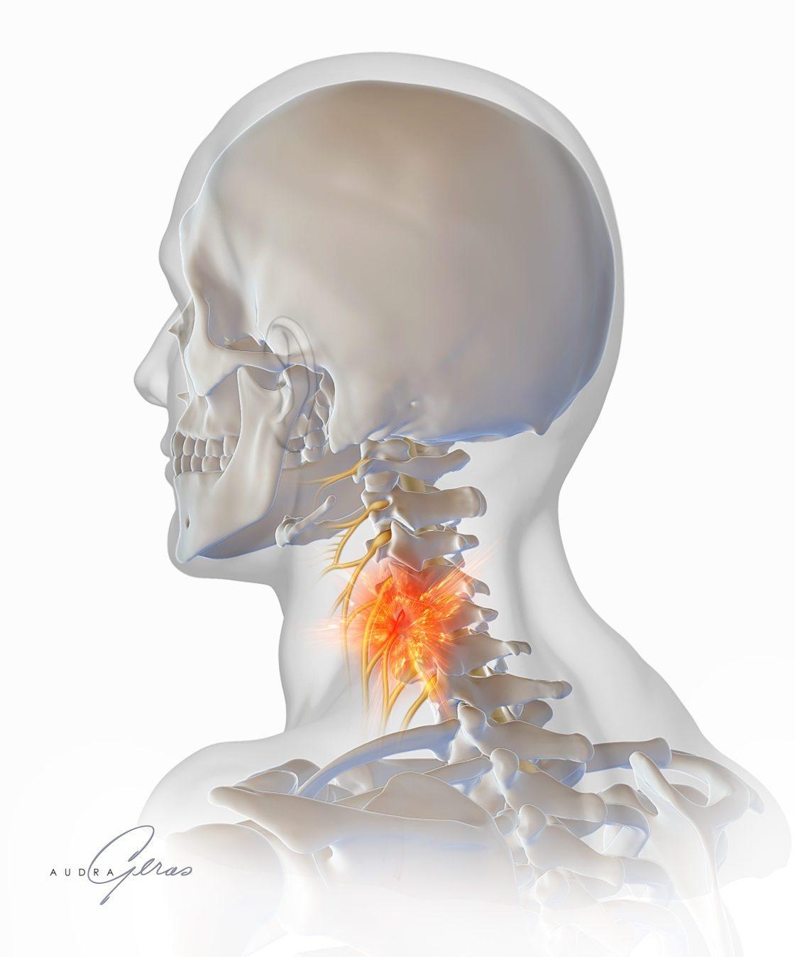 Cervical Nerve Root Impingement - Geras Healthcare Productions