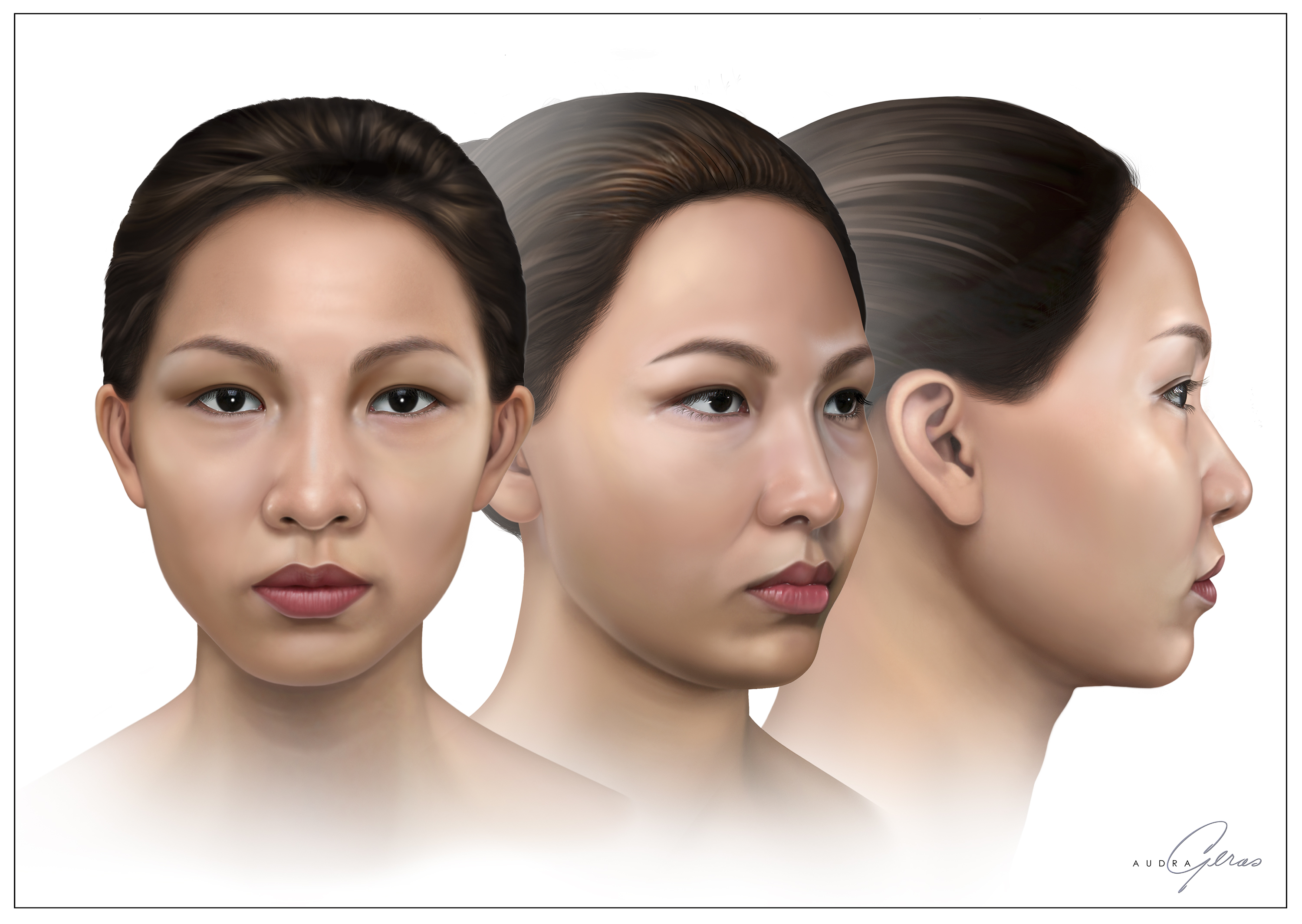 3 Views of Asian Face for Botox - Geras Healthcare Productions