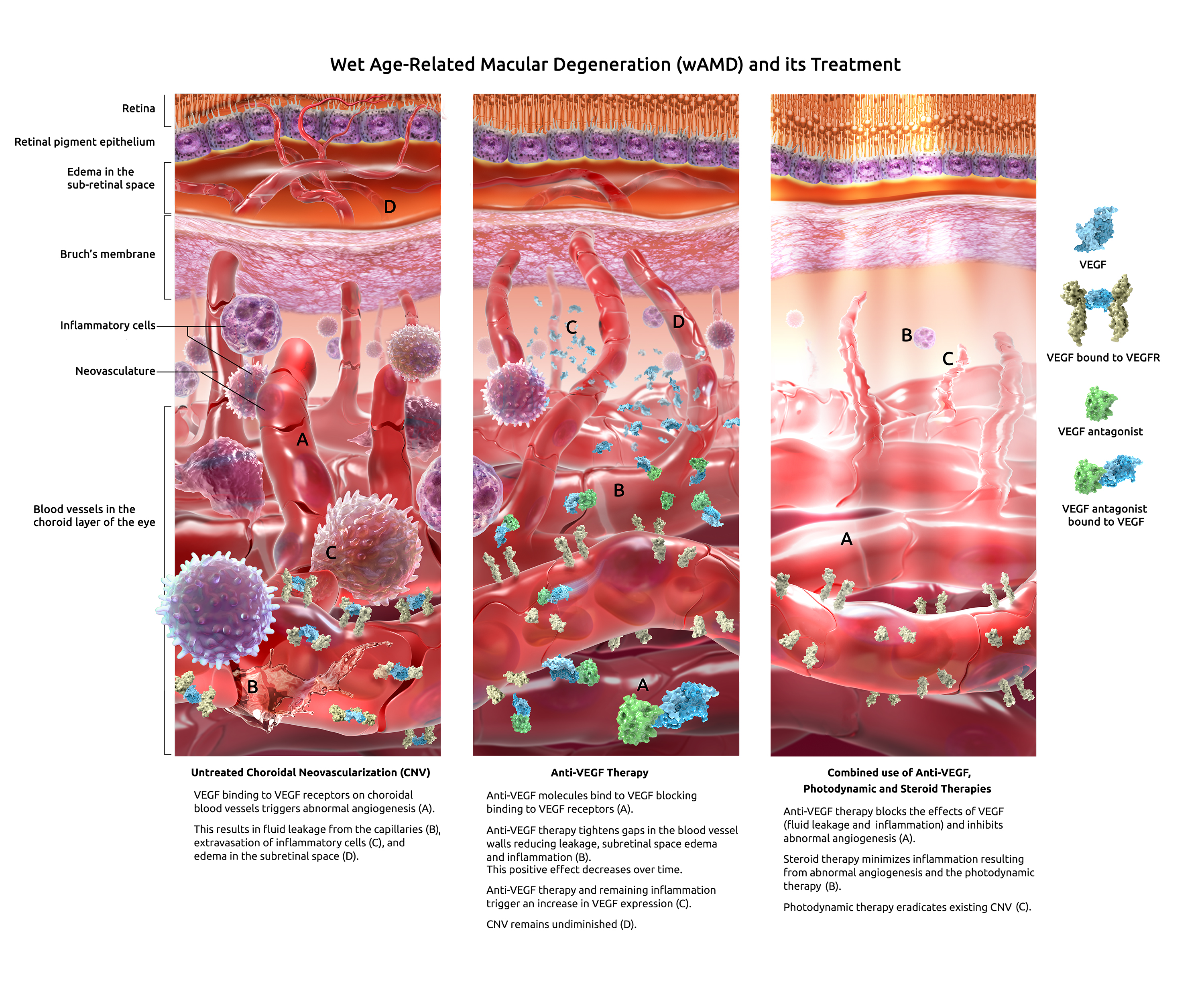 Triptych Illustration on Wet Age-Related Macular Degeneration and